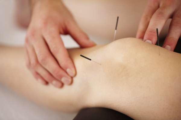 Zensations Medical Acupuncture